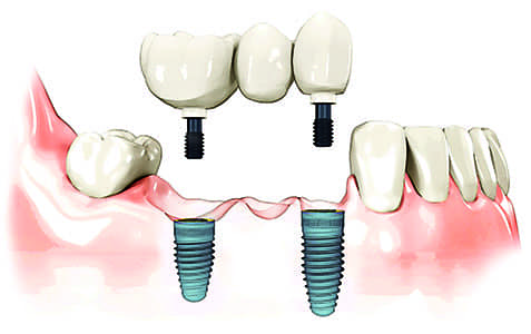 dental implant in Vestal